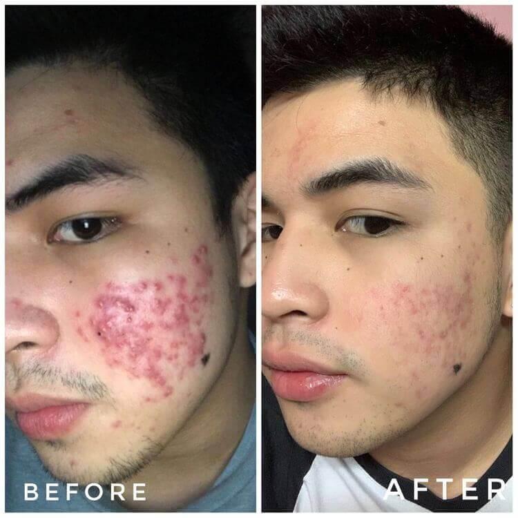 hiệu quả sử dụng Lumos Acne