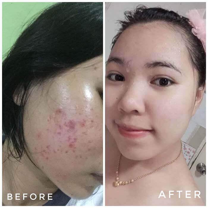 Kết quả sử dụng Lumos Acne