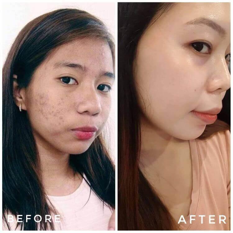 Trước và sau Lumos Acne