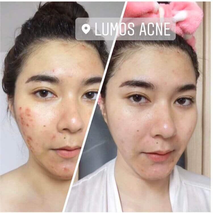 Trước sau khi sử dụng Lumos Acne